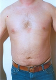 Male Breast Reduction Before Photo | Savoy, IL | Dr. G.D. Castillo