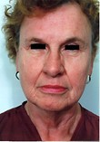 Eyelid Surgery, Face Lift, Laser Resurfacing Before Photo | Savoy, IL | Dr. G.D. Castillo