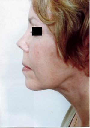 Eyelid Surgery After Photo | Savoy, IL | Dr. G.D. Castillo