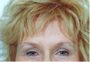 Brow Lift After Photo | Savoy, IL | Dr. G.D. Castillo