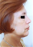 Chin Surgery, Rhinoplasty (Nose Surgery) After Photo | Savoy, IL | Dr. G.D. Castillo