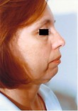 Chin Surgery, Rhinoplasty (Nose Surgery) Before Photo | Savoy, IL | Dr. G.D. Castillo