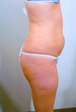 Liposuction Before Photo | Savoy, IL | Dr. G.D. Castillo