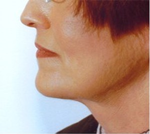 Neck Liposculpture After Photo | Savoy, IL | Dr. G.D. Castillo